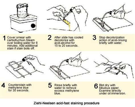ziehl neelsen principle ziehl neelsen acid fast staining procedure medical