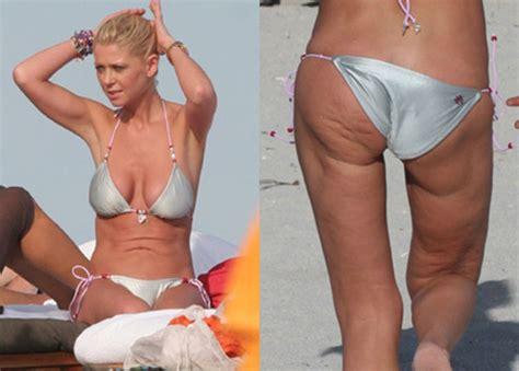 Did Banks Liposuction by Tara Cellulite How Tara Got Rid Of Cellulite