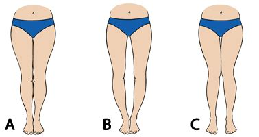 bow legs no more how to straighten your legs without - Boat Legged Definition