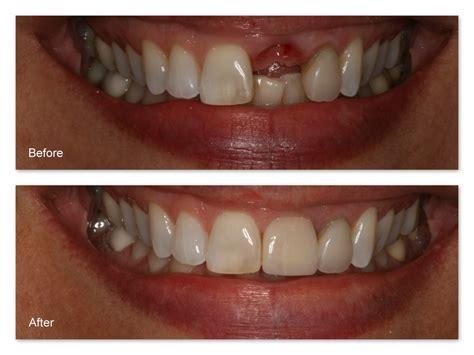 4 missing front teeth implants dental implant gallery dr jack m hosner d d s