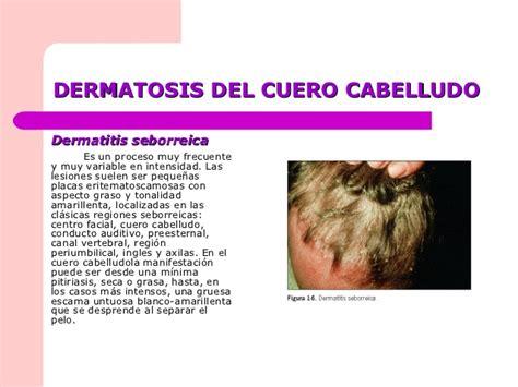 infeccion cuero cabelludo infecciones e infestaciones cabello y cuero cabelludo