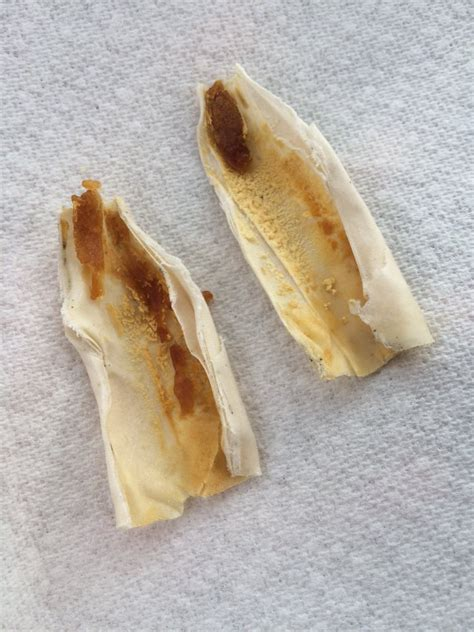 Ear Wax Candles For Ear Infection by Results Of My Ear Candling Experience Grossly Satisfying