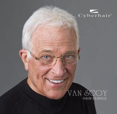 new hair replacement technology cyberhair men s hair restoration cleveland columbus