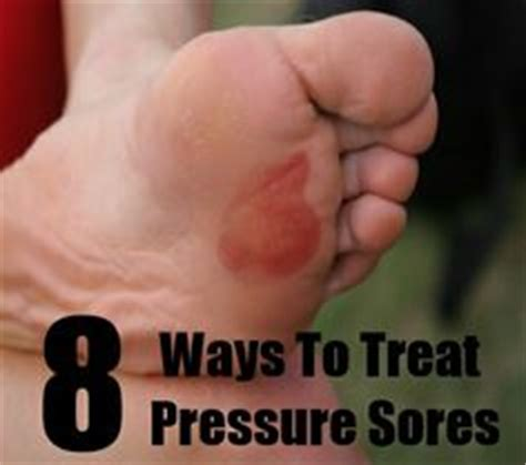 treatment for bed sores on buttocks 1000 images about pressure sores on pinterest pressure