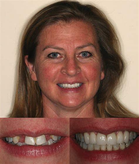 comfort dental parker colorado implants periodontal disease christine theroux dds