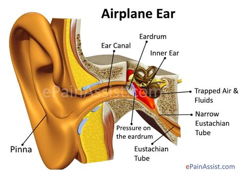 Ear Aches During A Detox by What Causes Ear In Flight Or Airplane Ear Its