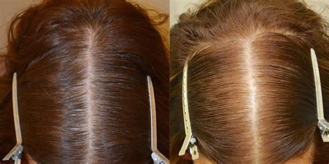 can african american women use rogaine finasteride spironolactone and minoxidil females