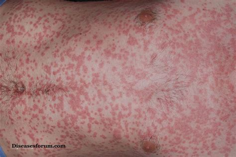 best light for psoriasis guttate psoriasis symptoms causes treatment pictures