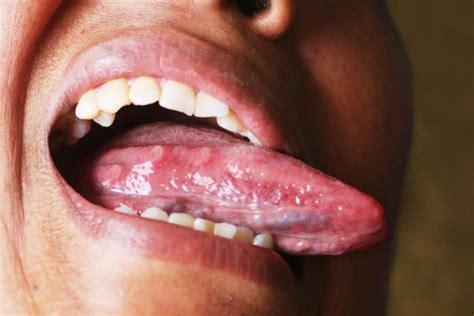 ombelico dolore interno dolor en la lengua causas
