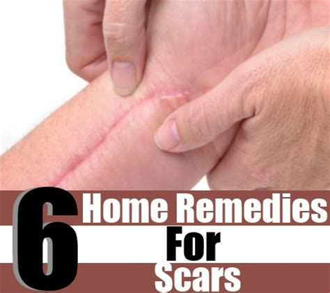 6 best home remedies for scars treatments cure