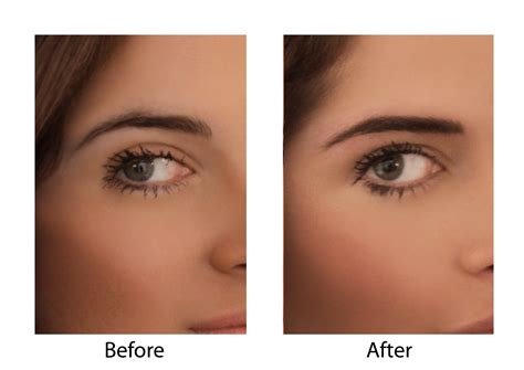 Maybelline Quot Brow Drama eyebrow hair loss types causes pictures diagnosis