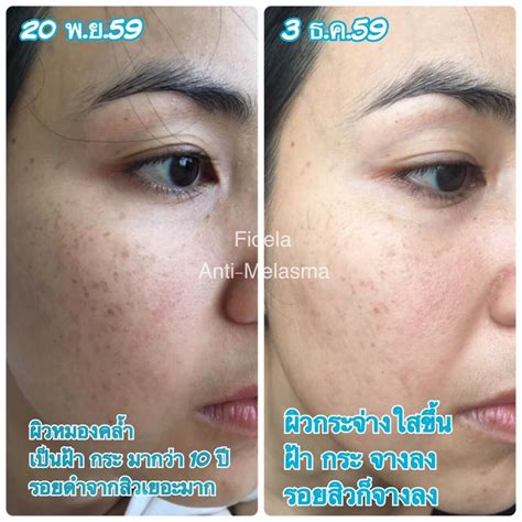 Melasma Whitening by Fidela Anti Melasma Whitening Serum Thailand Best