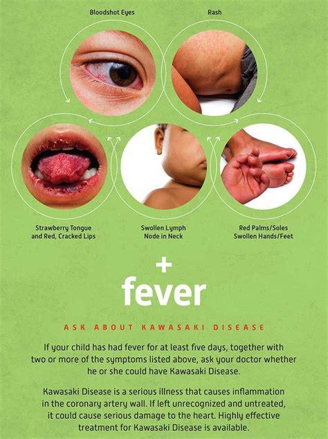 Kawasaki Disease Images by 12 Best Images About Kawasaki Disease Awareness On