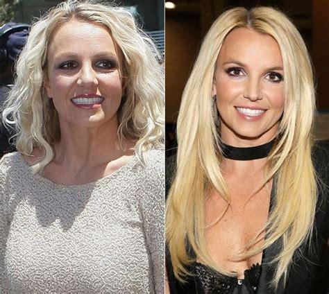 Britneys To Toe Plastic Surgery by Plastic Surgery Worldnewsinn