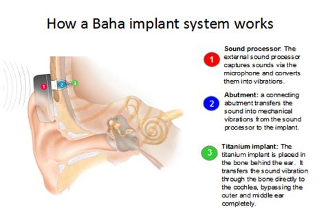 getting a perm with a baba hearing implant can i bone anchored hearing aid ent florida