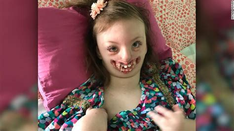 natalie brown oklahoma injury mom of girl with facial deformity fights twitter troll who