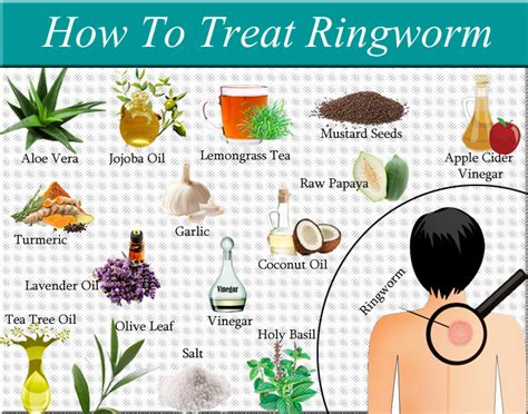 how to get rid of ringworm fast fungal infection 101 best home remes for scalp fungus homemade ftempo