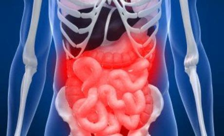 Qnc Jelly Gamat Untuk Radang Usus obat tradisional radang usus