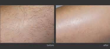 palomar laser for hair removal laser treatment photos l arte della bellezza
