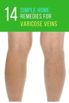 Home Remedies For Varicose Veins by Hair Thinning Remedies 15 Most Effective Treatments In
