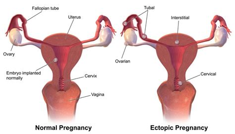 Uterus Lining Shedding Between Periods by 16 Uterus Lining Shedding After Period Herpes