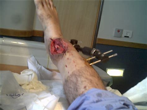 broken leg broken leg fracture of the distal right tibia with osteogenesis length correction