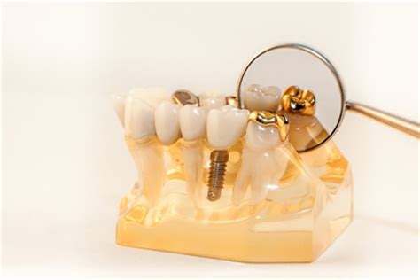 Comfort Dental Gold Plan Pricing by Why A Dental Refinery Is Better Than A For Gold