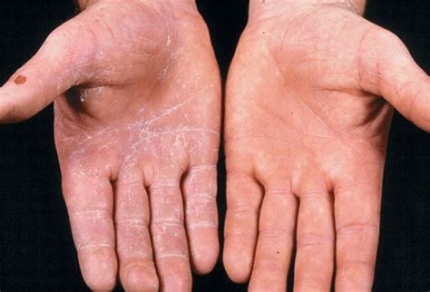 Why Do Itch So Bad After A Shower by Ringworm Treatment Pictures Causes And Symptoms