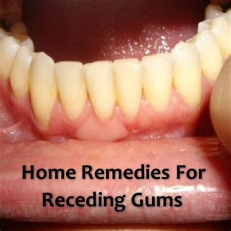 1000 ideas about receding gums on remedies