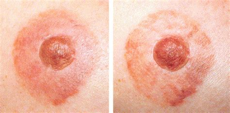 nipple tattoo experience the patient s experience of a nurse led nipple tattoo