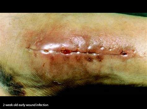 wound vac on c section incision how to treat infected surgical wound vac