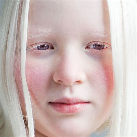 what color are albinos albinos the troubles they hearsaygh