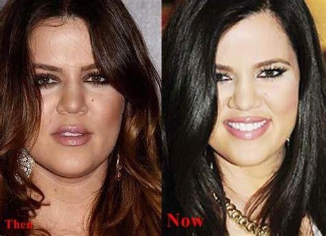 khloe kardashian plastic surgery 2015 khloe kardashian before and after plastic surgery 07