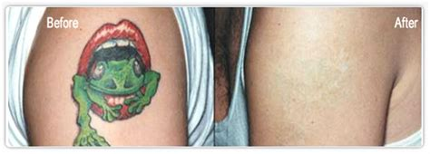 tattoo removal in delhi best skin doctor for laser removal in delhi