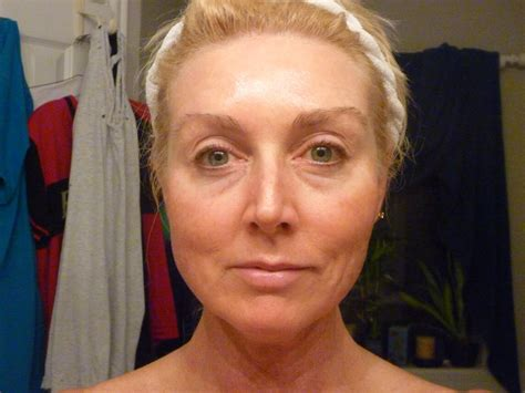 before picosure treatments and 2 weeks after my pam s efudex before starting efudex