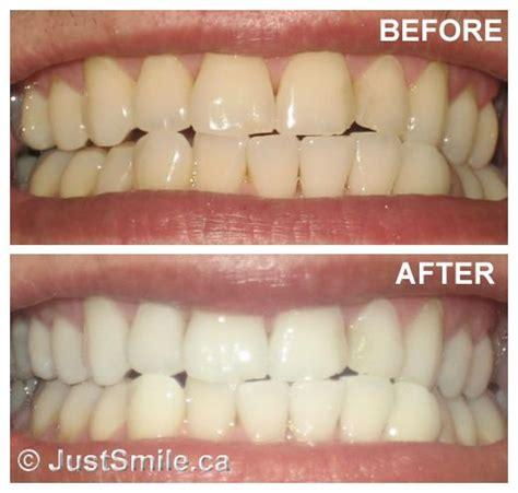 baking soda teeth whitening    teeth