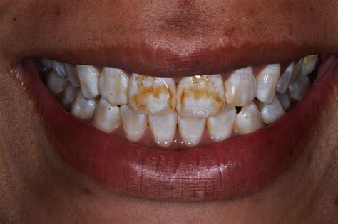 minimally invasive techniques  dental fluorosis