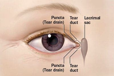 inner tear watery caused by blocked tear duct