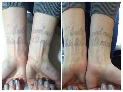laser tattoo removal after one session after one session the writing is disappearing