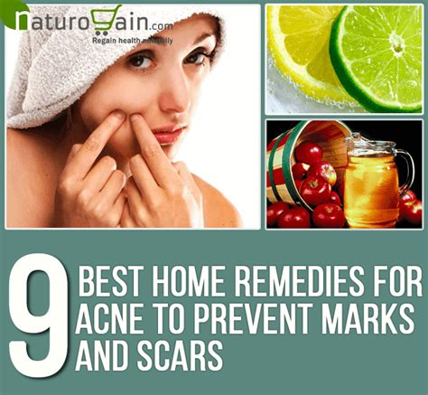 9 best home remedies for acne to prevent marks and scars