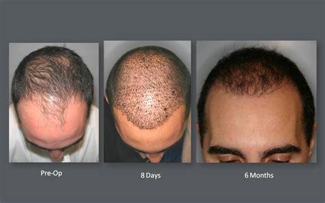 new technology for hair transplant hair transplant new technology hair transplant results
