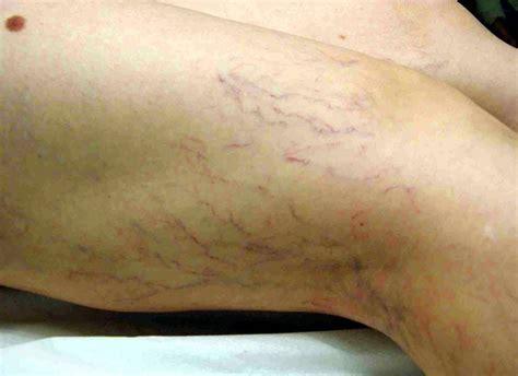 vasi capillari rotti capillari gambe gambe e piedi