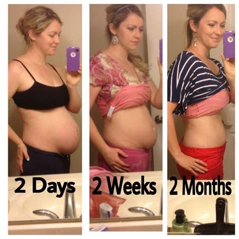 spd in pregnancy and c section best 25 after pregnancy body ideas on pinterest after