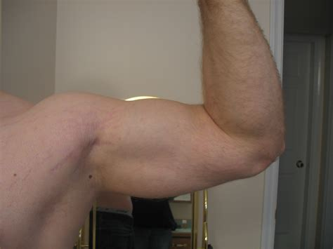 Bio Stretch Marks amorphic s bio stretch removal log