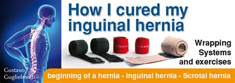 shut inguinal hernia without surgery exercises to strengthen the inguinal wall