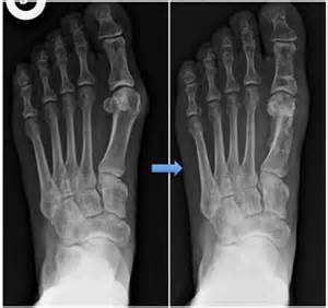 Akin Bunionectomy Scarf Osteotomy Hallux Valgus Image Search Results