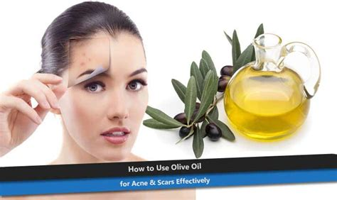 Olive Acne by How To Use Olive For Acne Scars Effectively