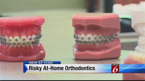 straightening your teeth at home can be risky