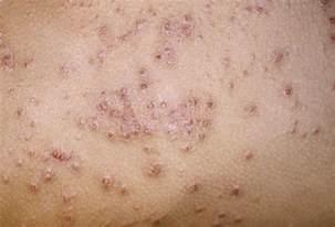 Healthy life eczema