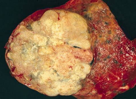 nodulo mobile al adenocarcinoma of the lung